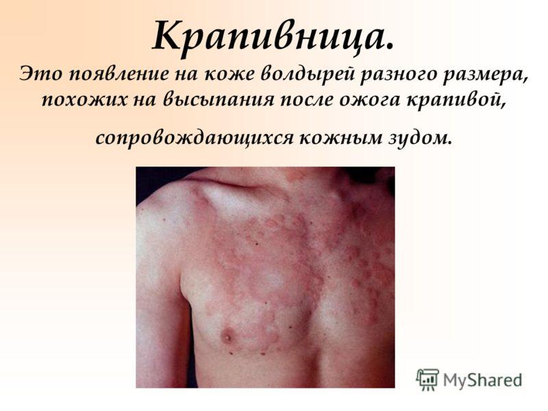 Крапивница. Это появление на коже волдырей разного размера, похожих на высыпания после ожога крапивой, сопровождающихся кожным зудом.