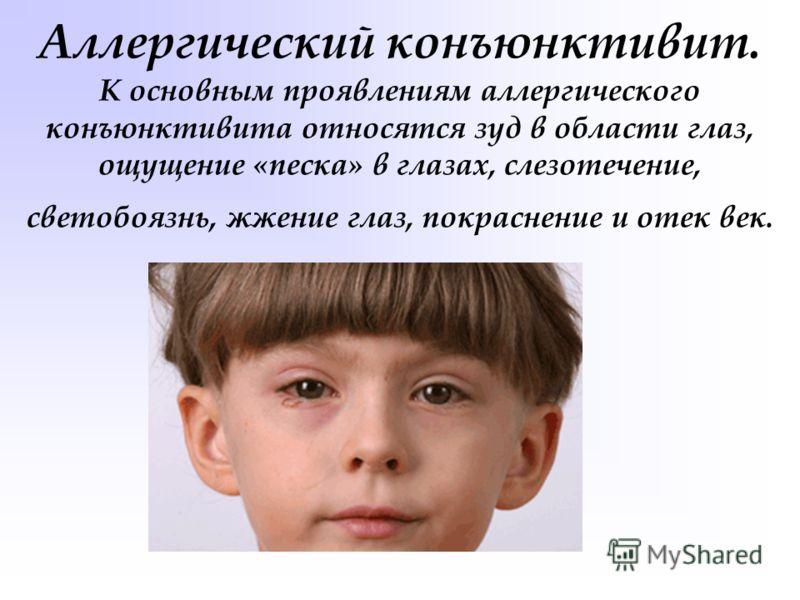 отек век при аллергии лечение