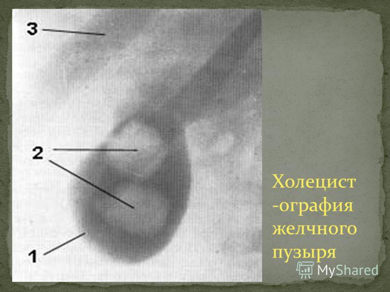 Холецист