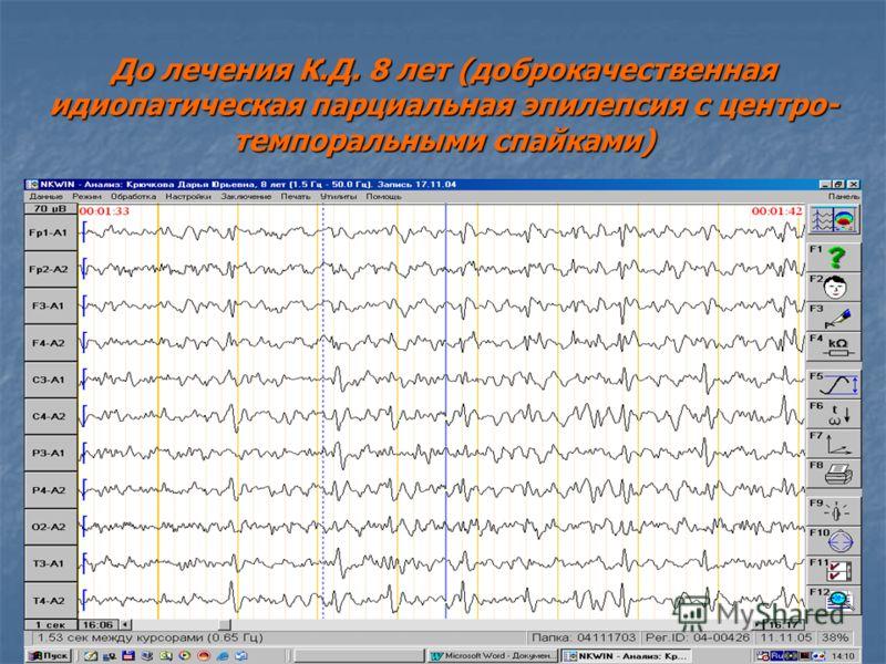 До лечения К.Д. 8 лет (доброкачественная идиопатическая парциальная эпилепсия с центро- темпоральными спайками)