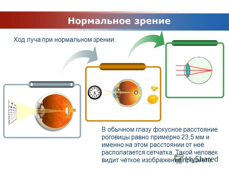 www.themegallery.com Company Logo Ход луча при нормальном зрении: Нормальное зрение В обычном глазу фокусное расстояние роговицы равно примерно 23,5 мм и именно на этом расстоянии от неё располагается сетчатка. Такой человек видит чёткое изображение