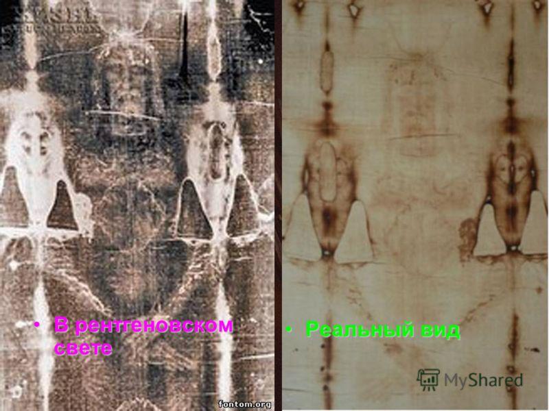 В рентгеновском светеВ рентгеновском свете Реальный видРеальный вид