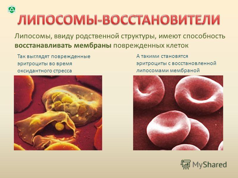 Липосомы, ввиду родственной структуры, имеют способность восстанавливать мембраны поврежденных клеток Так выглядят поврежденные эритроциты во время оксидантного стресса А такими становятся эритроциты с восстановленной липосомами мембраной