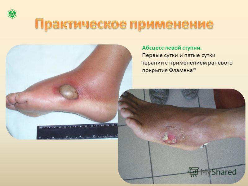 Абсцесс левой ступни. Первые сутки и пятые сутки терапии с применением раневого покрытия Фламена®