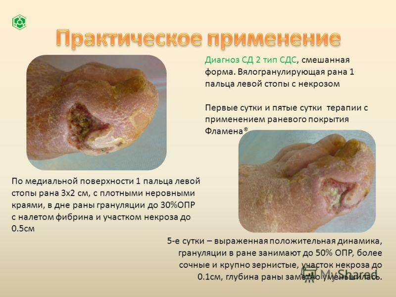 Диагноз СД 2 тип СДС, смешанная форма. Вялогранулирующая рана 1 пальца левой стопы с некрозом Первые сутки и пятые сутки терапии с применением раневого покрытия Фламена® По медиальной поверхности 1 пальца левой стопы рана 3х2 см, с плотными неровными