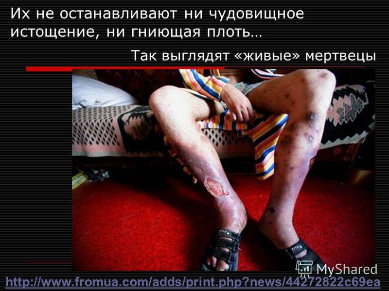Их не останавливают ни чудовищное истощение, ни гниющая плоть… Так выглядят «живые» мертвецы http://www.fromua.com/adds/print.php?news/44272822c69ea