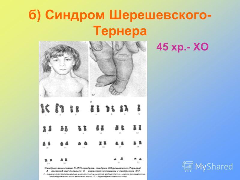 б) Синдром Шерешевского- Тернера 45 хр.- ХО