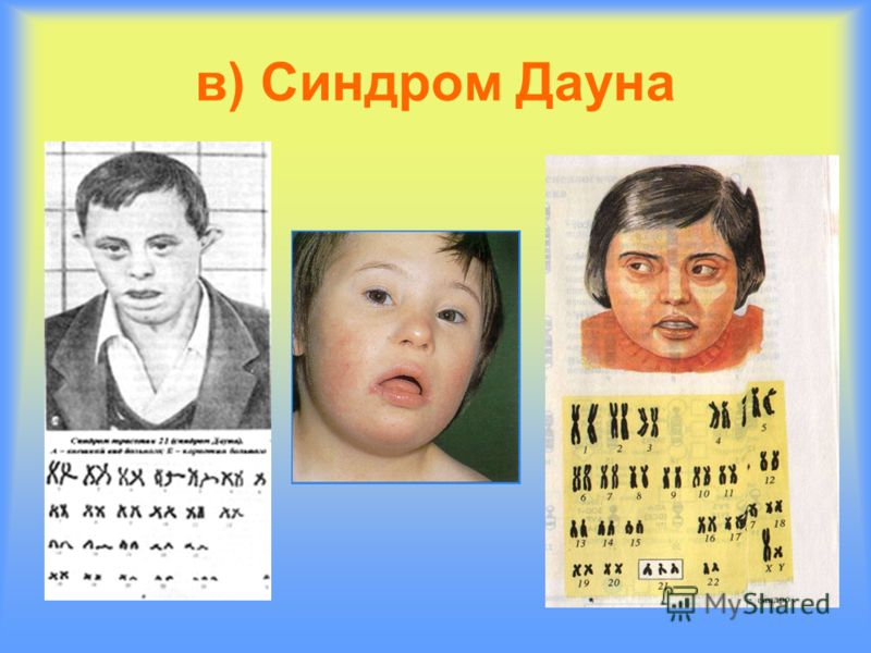 в) Синдром Дауна