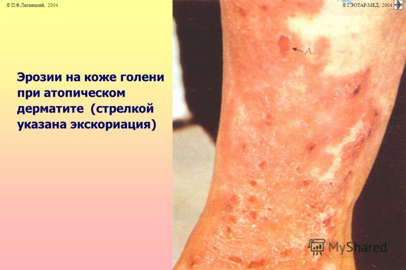 Эрозии на коже голени при атопическом дерматите (стрелкой указана экскориация) © П.Ф.Литвицкий, 2004 © ГЭОТАР-МЕД, 2004