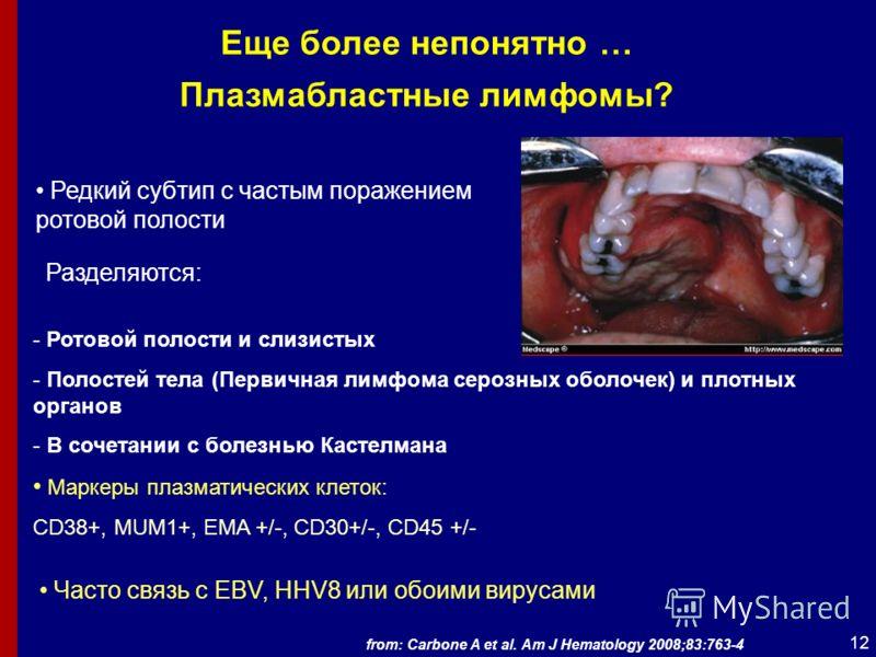 12 Еще более непонятно … Плазмабластные лимфомы? Редкий субтип с частым поражением ротовой полости Разделяются: - Ротовой полости и слизистых - Полостей тела (Первичная лимфома серозных оболочек) и плотных органов - В сочетании с болезнью Кастелмана