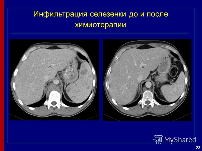 23 Инфильтрация селезенки до и после химиотерапии