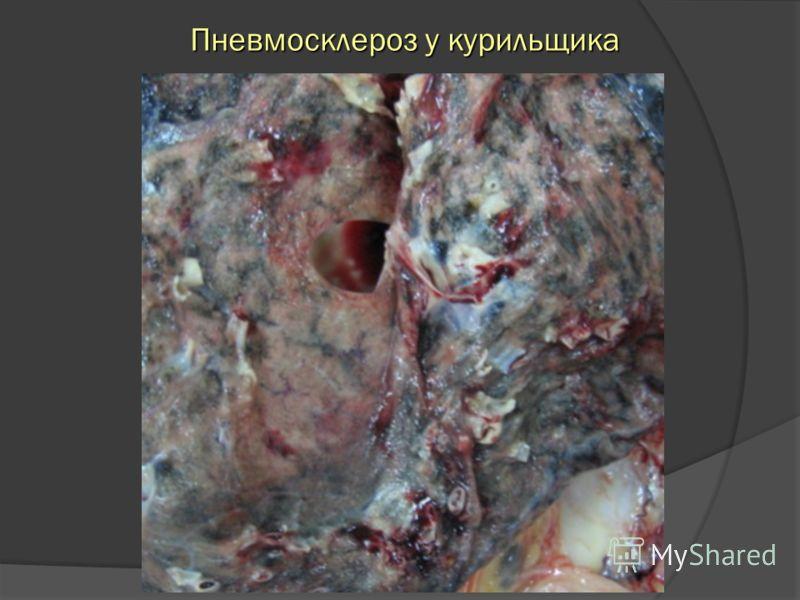 Пневмосклероз у курильщика Пневмосклероз у курильщика