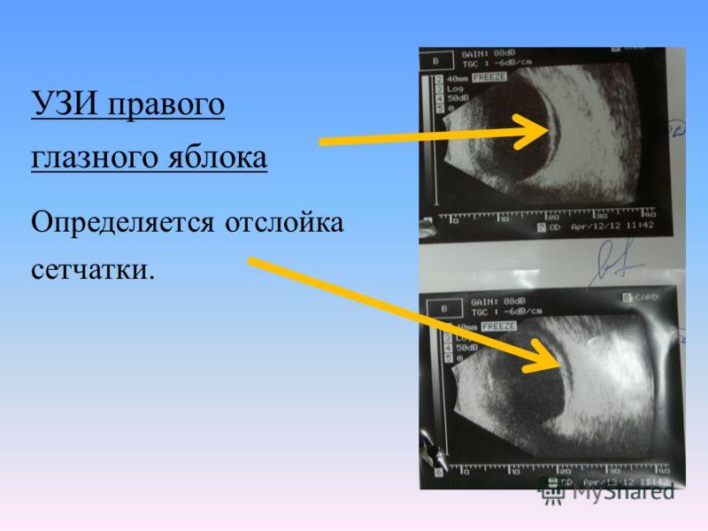 УЗИ правого глазного яблока Определяется отслойка сетчатки.