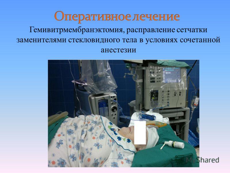Гемивитрмембранэктомия, расправление сетчатки заменителями стекловидного тела в условиях сочетанной анестезии