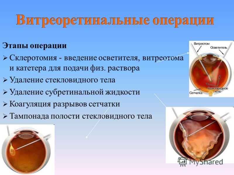 Склеротомия