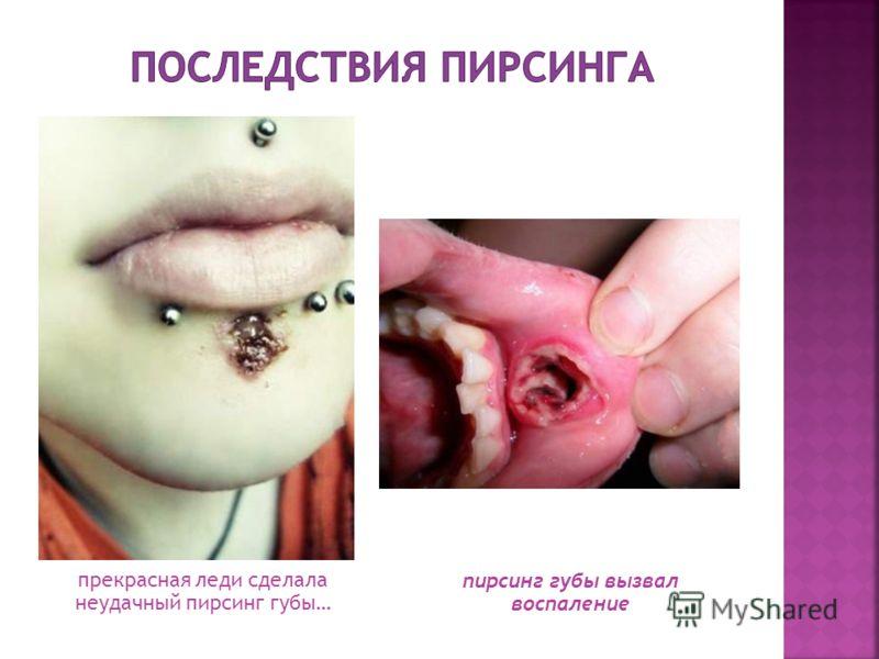 прекрасная леди сделала неудачный пирсинг губы… пирсинг губы вызвал воспаление