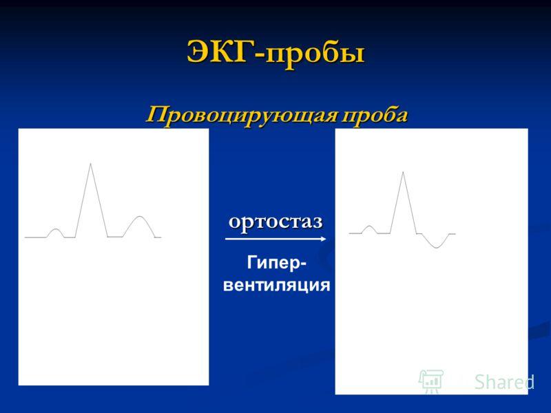 ЭКГ-пробы Провоцирующая проба ортостаз Гипер- вентиляция