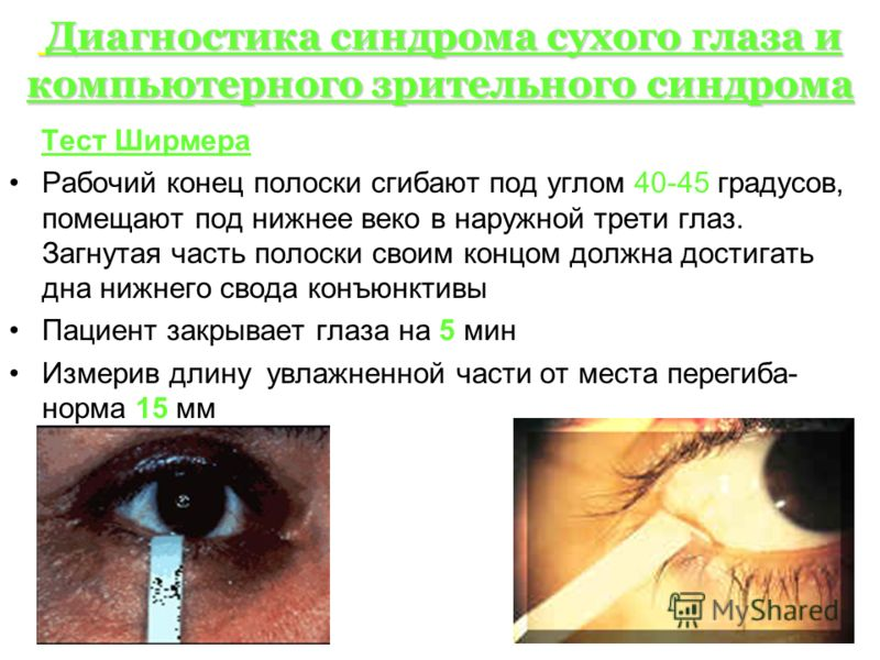 Диагностика синдрома сухого глаза и компьютерного зрительного синдрома Диагностика синдрома сухого глаза и компьютерного зрительного синдрома Тест Ширмера Рабочий конец полоски сгибают под углом 40-45 градусов, помещают под нижнее веко в наружной тре