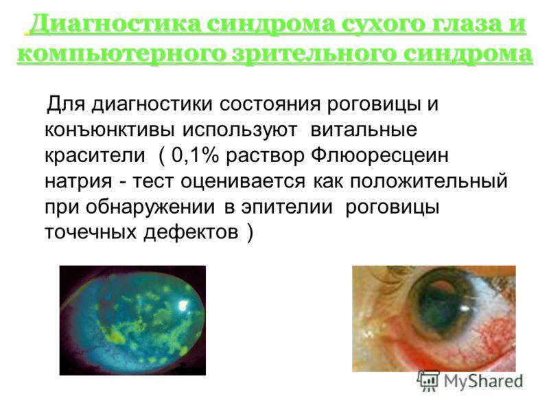 Диагностика синдрома сухого глаза и компьютерного зрительного синдрома Диагностика синдрома сухого глаза и компьютерного зрительного синдрома Для диагностики состояния роговицы и конъюнктивы используют витальные красители ( 0,1% раствор Флюоресцеин н