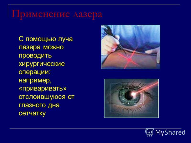 Применение лазера С помощью луча лазера можно проводить хирургические операции: например, «приваривать» отслоившуюся от глазного дна сетчатку