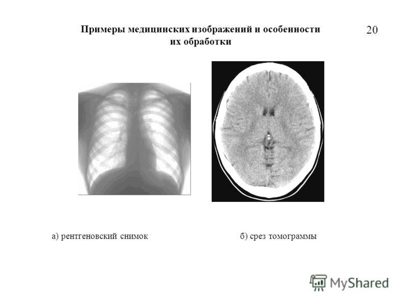 20 Примеры медицинских изображений и особенности их обработки а) рентгеновский снимок б) срез томограммы