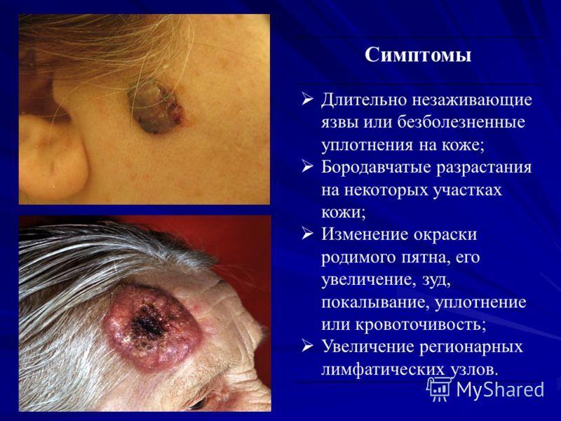 Симптомы Длительно незаживающие язвы или безболезненные уплотнения на коже; Бородавчатые разрастания на некоторых участках кожи; Изменение окраски родимого пятна, его увеличение, зуд, покалывание, уплотнение или кровоточивость; Увеличение регионарных
