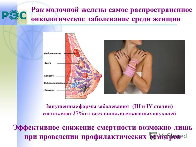 Запущенные формы заболевания (III и IV стадии) составляют 37% от всех вновь выявленных опухолей Рак молочной железы самое распространенное онкологическое заболевание среди женщин Эффективное снижение смертности возможно лишь при проведении профилакти