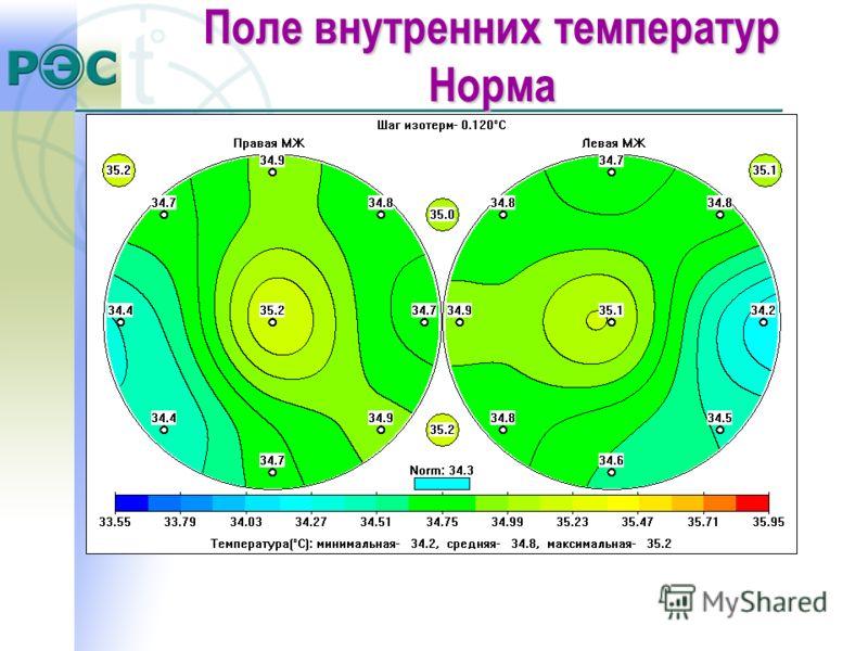 Поле внутренних температур Норма