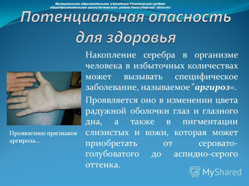 Накопление серебра в организме человека в избыточных количествах может вызывать специфическое заболевание, называемое
