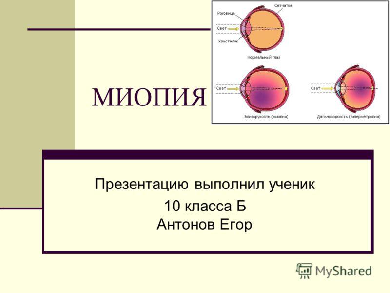 миопия фото
