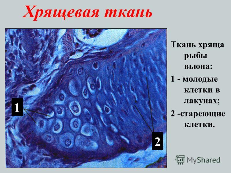 Хрящевая ткань Ткань хряща рыбы вьюна: 1 - молодые клетки в лакунах; 2 -стареющие клетки. 1 2