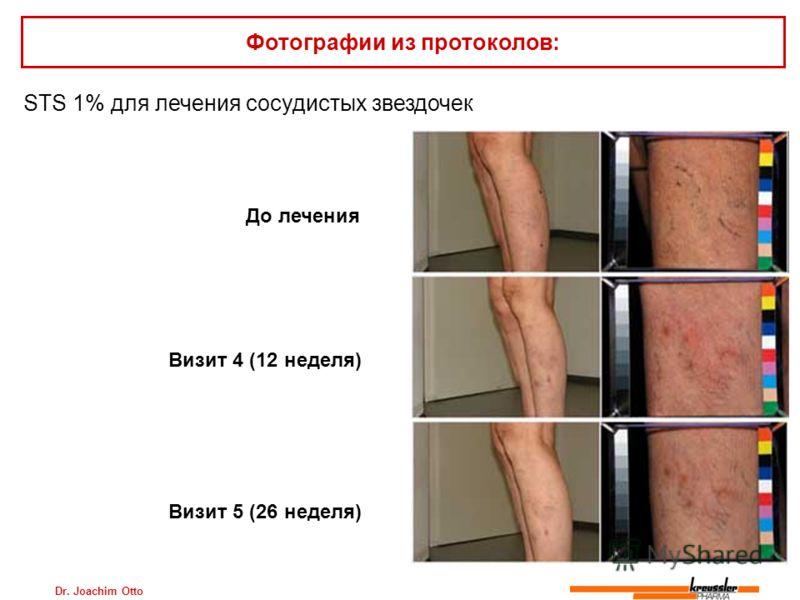 Dr. Joachim Otto STS 1% для лечения сосудистых звездочек Фотографии из протоколов: До лечения Визит 4 (12 неделя) Визит 5 (26 неделя)
