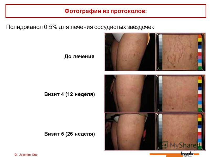 Dr. Joachim Otto Полидоканол 0,5% для лечения сосудистых звездочек Фотографии из протоколов: До лечения Визит 4 (12 неделя) Визит 5 (26 неделя)