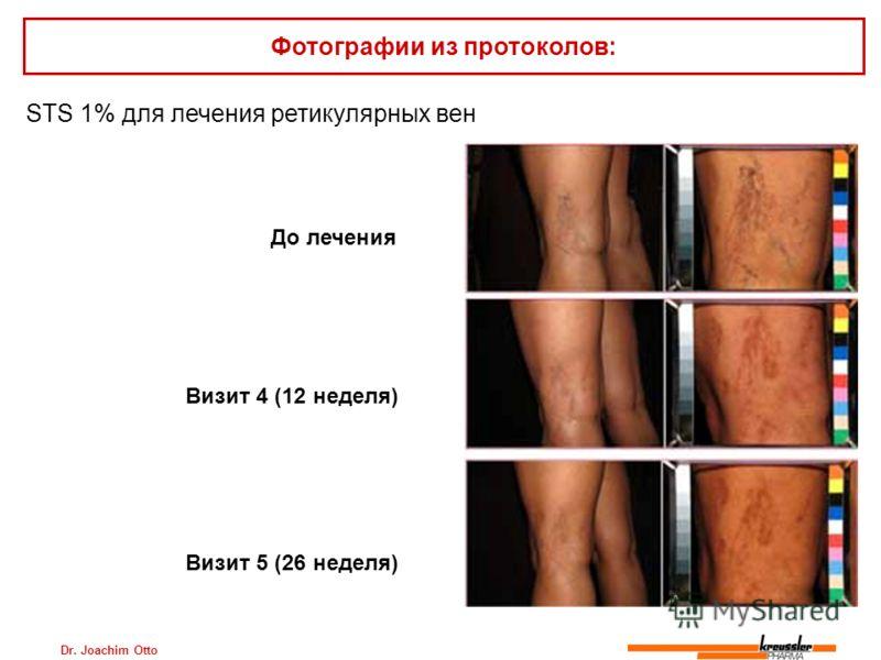Dr. Joachim Otto STS 1% для лечения ретикулярных вен Фотографии из протоколов: До лечения Визит 4 (12 неделя) Визит 5 (26 неделя)
