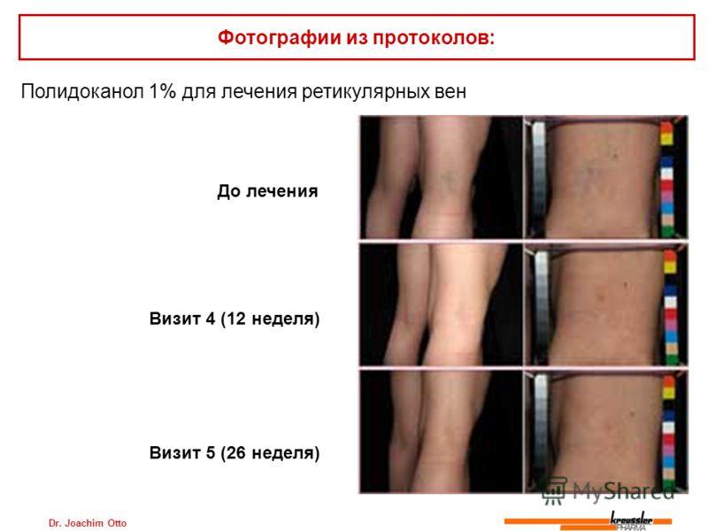 Dr. Joachim Otto Полидоканол 1% для лечения ретикулярных вен Фотографии из протоколов: До лечения Визит 4 (12 неделя) Визит 5 (26 неделя)