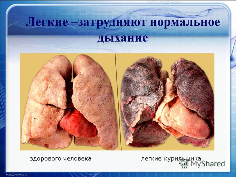 Легкие –затрудняют нормальное дыхание здорового человекалегкие курильщика