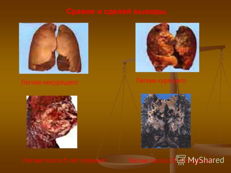 Сравни и сделай выводы. Легкие некурящего Легкие курящего Легкие после 5 лет курения Легкие после 25 лет курения