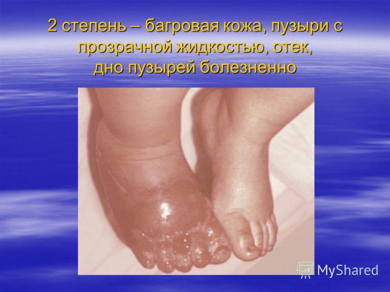 2 степень – багровая кожа, пузыри с прозрачной жидкостью, отек, дно пузырей болезненно