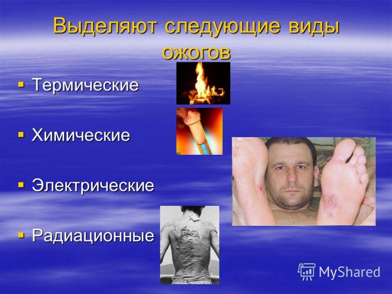 Выделяют следующие виды ожогов Термические Термические Химические Химические Электрические Электрические Радиационные Радиационные