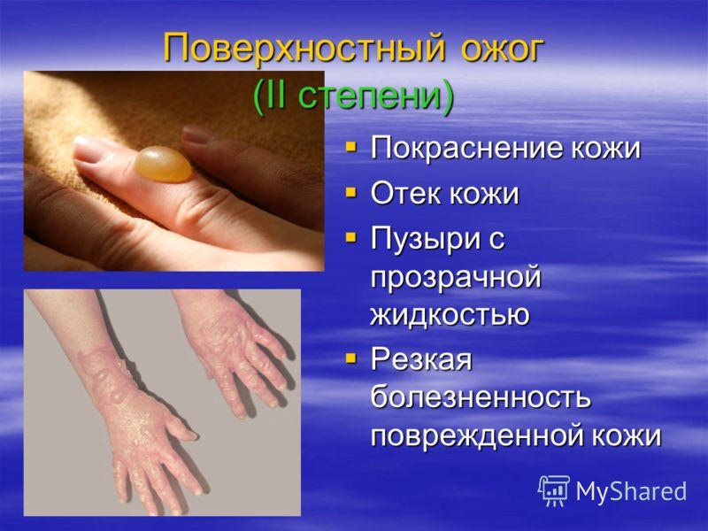 Поверхностный ожог (II степени) Покраснение кожи Покраснение кожи Отек кожи Отек кожи Пузыри с прозрачной жидкостью Пузыри с прозрачной жидкостью Резкая болезненность поврежденной кожи Резкая болезненность поврежденной кожи
