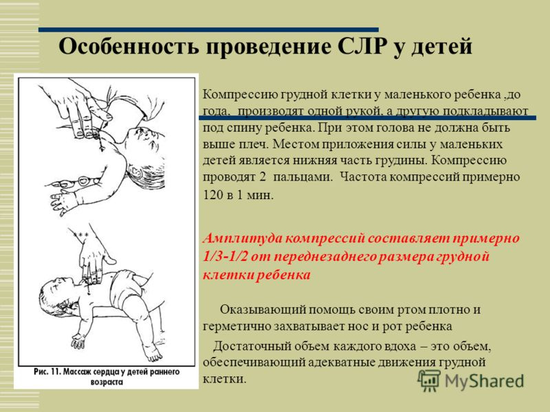 Продолжать реанимацию в соотношении 30 толчков : 2 вдоха до прибытия специализированной помощи 30 : 2 Эффективность реанимации проверяется на сонной артерии, каждые 2 цикла.