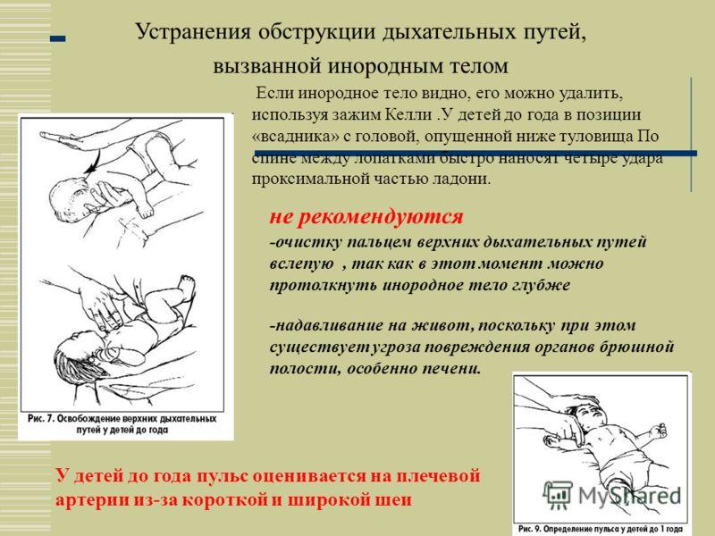 Компрессию грудной клетки у маленького ребенка,до года, производят одной рукой, а другую подкладывают под спину ребенка. При этом голова не должна быть выше плеч. Местом приложения силы у маленьких детей является нижняя часть грудины. Компрессию пров