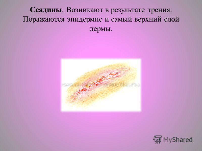 Ссадины. Возникают в результате трения. Поражаются эпидермис и самый верхний слой дермы.
