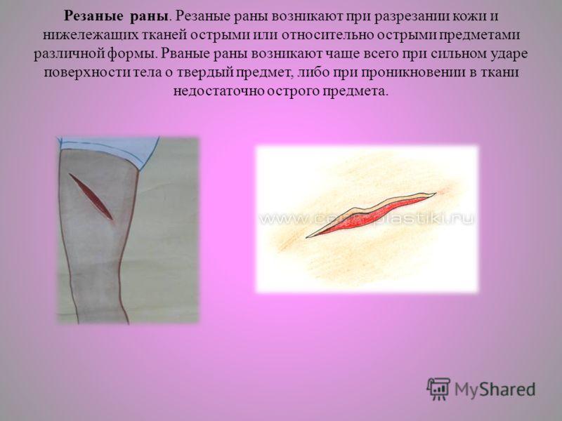 Резаные раны. Резаные раны возникают при разрезании кожи и нижележащих тканей острыми или относительно острыми предметами различной формы. Рваные раны возникают чаще всего при сильном ударе поверхности тела о твердый предмет, либо при проникновении в