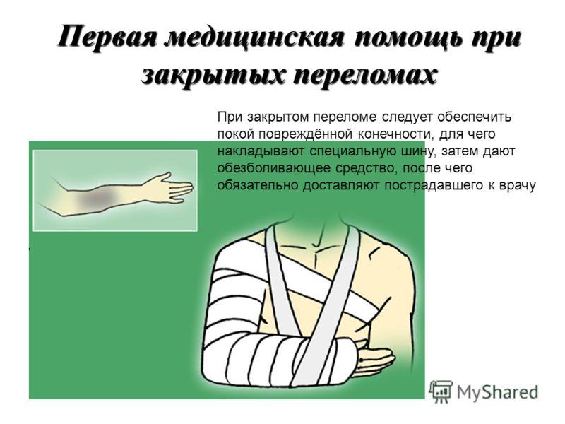 Перелом – это нарушение целостности кости Переломы бывают закрытые и открытые Признаки открытого перелома: видны костные обломки; деформация и отёк конечности; наличие раны, часто с кровотечением. Признаки закрытого перелома: сильная боль при движени