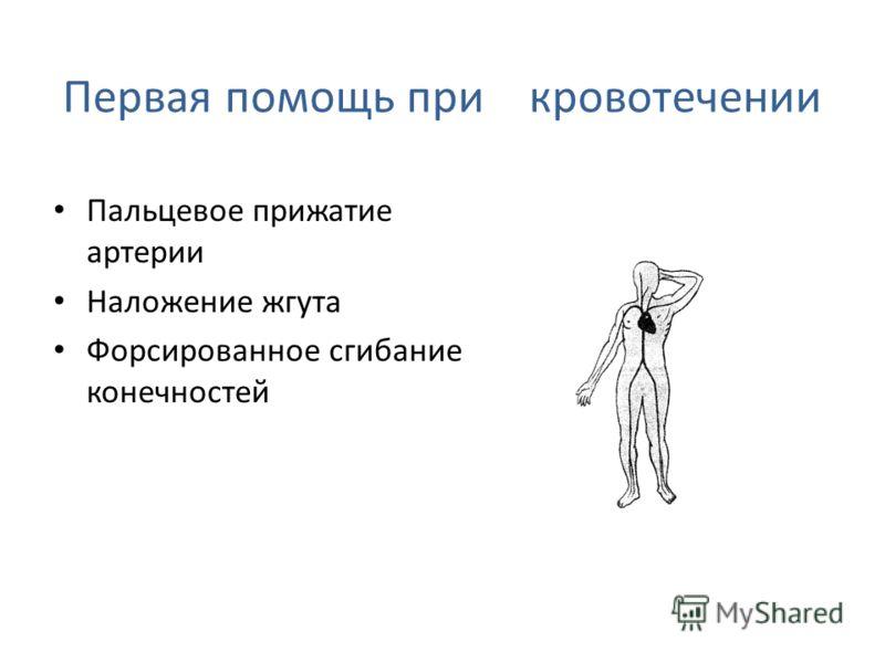 Кровотечение В зависимости от того, какой сосуд кровоточит, кровотечение может быть капиллярным, венозным, смешанным и артериальным (рис.). При наружном капиллярном кровотечении кровь выделяется равномерно из всей раны (как из губки); при венозном он