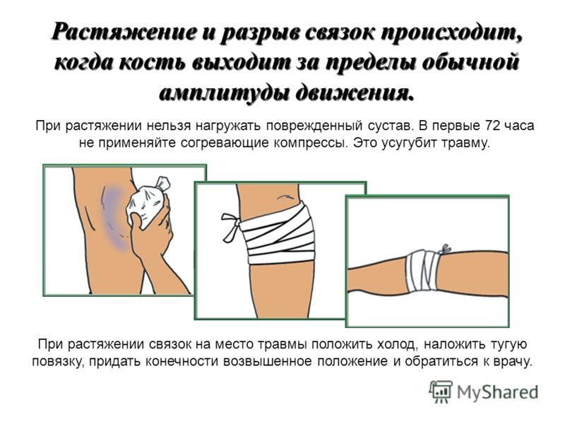 Лечение при растяжении в домашних условиях 358