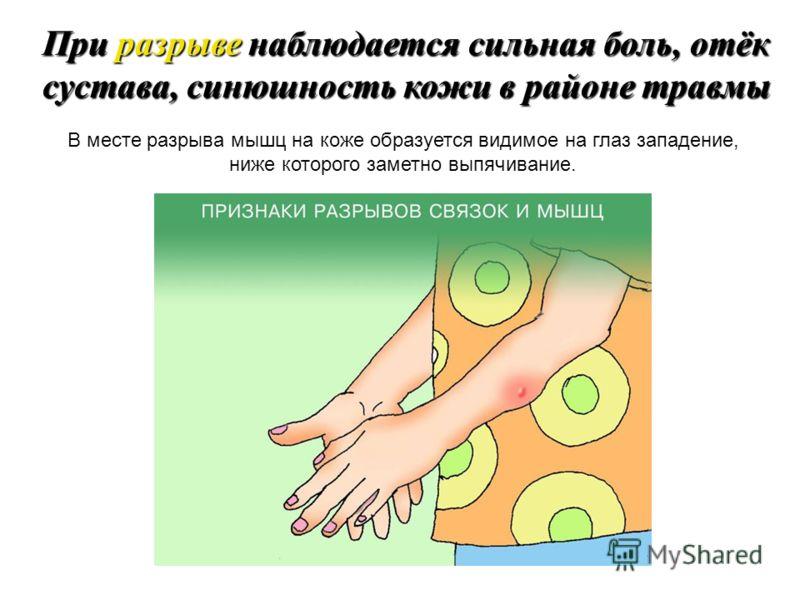 Растяжение и разрыв связок происходит, когда кость выходит за пределы обычной амплитуды движения. При растяжении нельзя нагружать поврежденный сустав. В первые 72 часа не применяйте согревающие компрессы. Это усугубит травму. При растяжении связок на