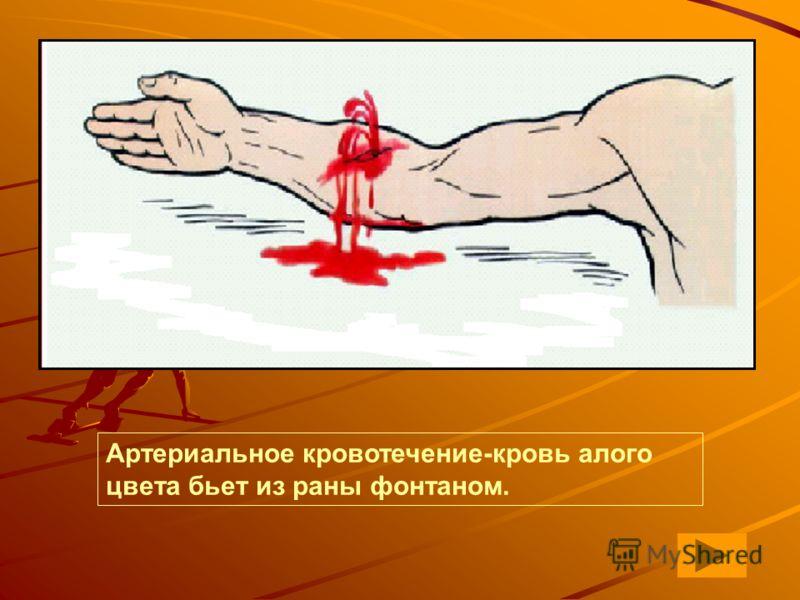 Артериальное кровотечение-кровь алого цвета бьет из раны фонтаном.