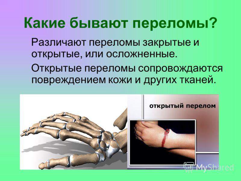 Различают переломы закрытые и открытые, или осложненные. Открытые переломы сопровождаются повреждением кожи и других тканей. Какие бывают переломы?
